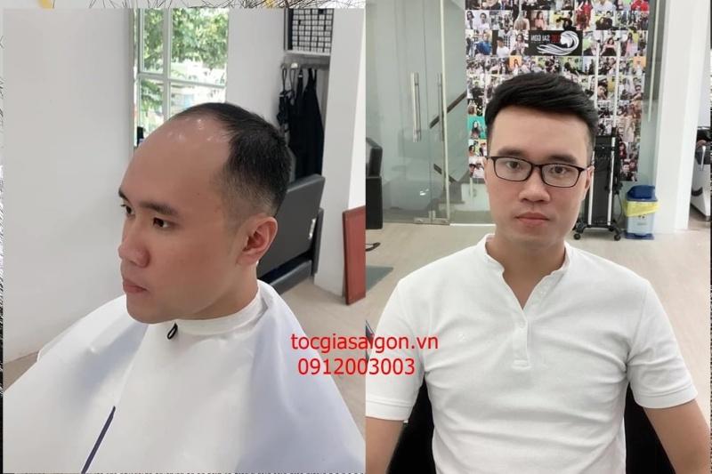 Tóc giả nam siêu da đầu - thật đến từng chân tóc